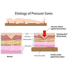 OWC006c - Overview of Pressure Ulcer Etiology - Part 3
