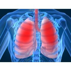 DMGT016 - Overview of Cystic Fibrosis