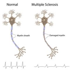 DMGT015 - Overview of Multiple Sclerosis